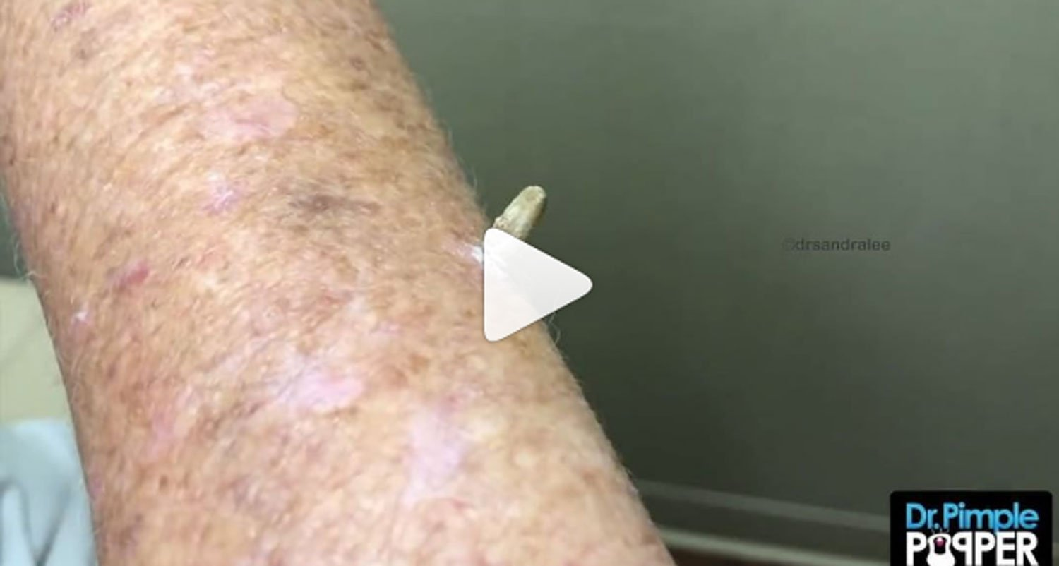 Dr Pimple Popper Removing A Cutaneous Horn Is V Unsettling
