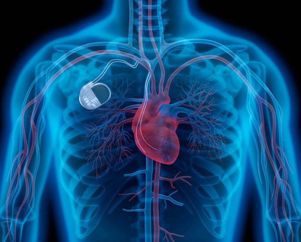Note: a health hazard for heart patients, Medtronic 157 000