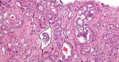 Scientists identify new family of drugs which could combat prostate cancer